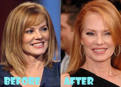 Marg Helgenberger Plastic Surgery Botox, Facelift
