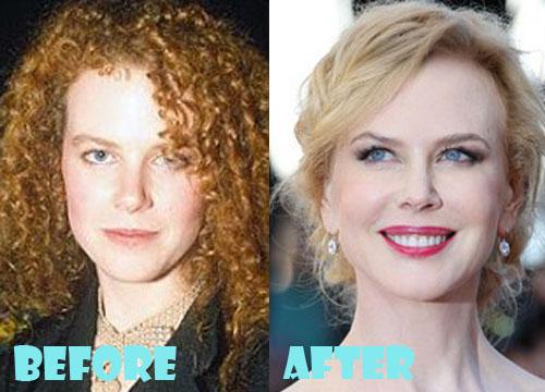 Nicole Kidman Plastic Surgery Botox