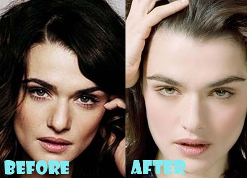 Rachel Weisz Plastic Surgery Nose Job