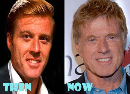 Robert Redford Plastic Surgery Facelift, Blepharoplasty