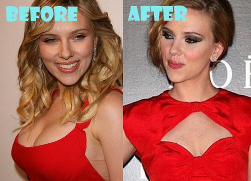 Scarlett Johansson Plastic Surgery Boob Job