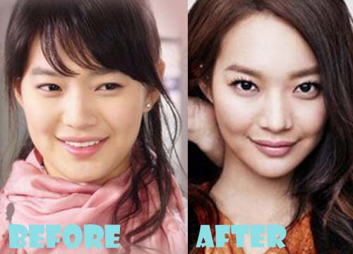 Shin Min Ah Plastic Surgery Nose Job