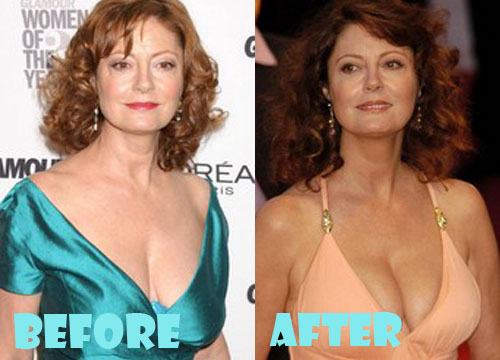 Susan Sarandon Plastic Surgery Boob Job