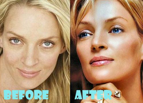 Uma Thurman Plastic Surgery Nose Job