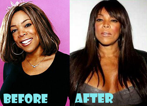 Wendy Williams Plastic Surgery Boob Job