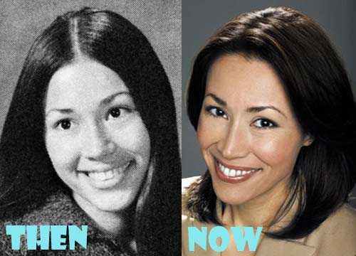 Ann Curry Plastic Surgery Facelift