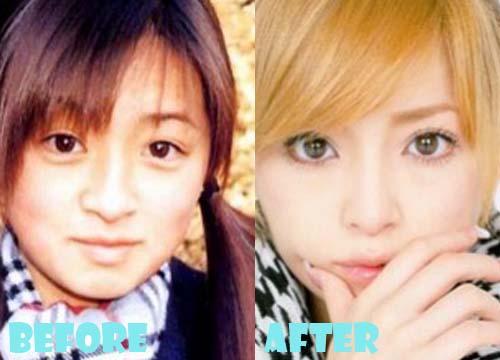 Ayumi Hamasaki Plastic Surgery Eyelid Surgery