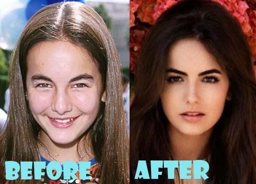 Camilla Belle Plastic Surgery Nose Job