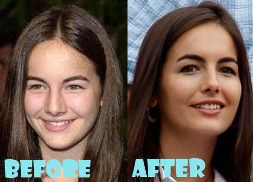 Camilla Belle Plastic Surgery