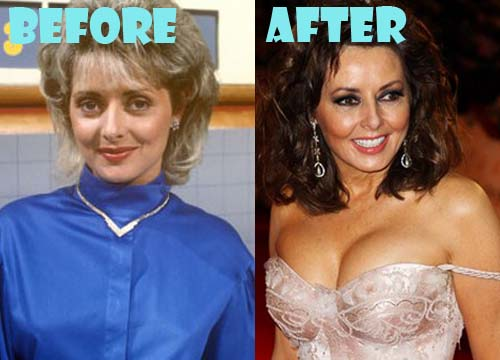 Carol Vorderman Plastic Surgery Breast Implant