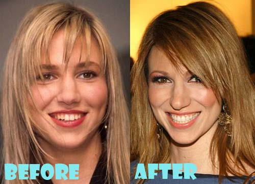 Debbie Gibson Plastic Surgery Nose Job