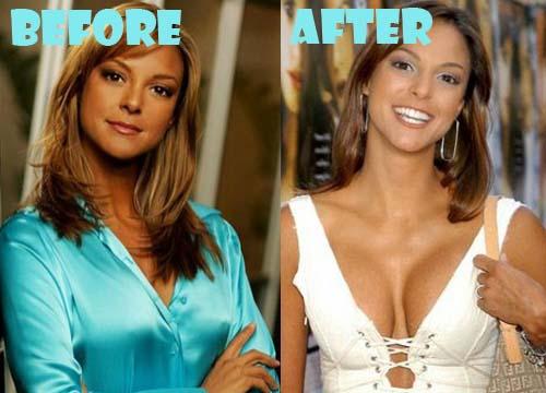 Eva LaRue Plastic Surgery Boob Job