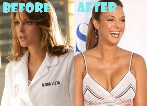Eva LaRue Plastic Surgery Breast Implant