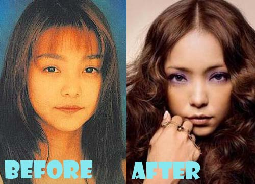 Namie Amuro Plastic Surgery Nose Job