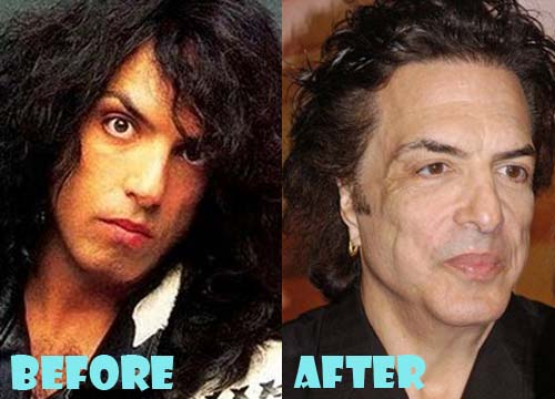 Paul Stanley Plastic Surgery Facelift, Nose Job