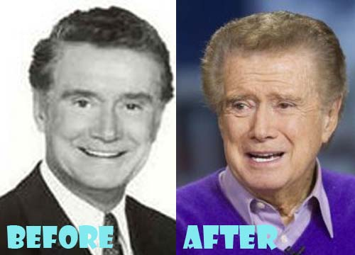 Regis Philbin Plastic Surgery Facelift, Blepharoplasty