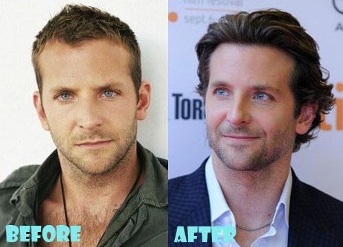Bradley Cooper Plastic Surgery Botox