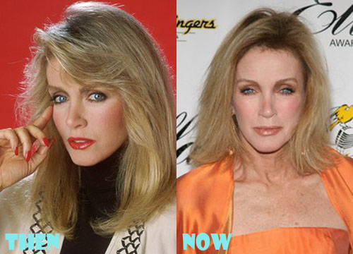 Donna Mills Plastic Surgery Botox, Facelift