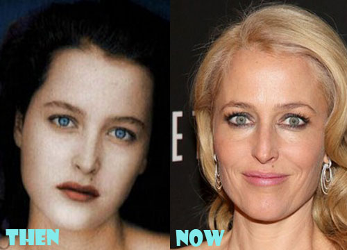 Gillian Anderson Plastic Surgery Botox, Facelift