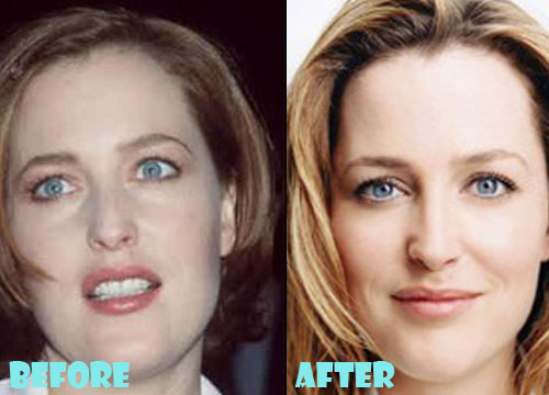 Gillian Anderson Plastic Surgery Nose Job