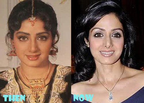 Sridevi Plastic Surgery Botox, Liposuction