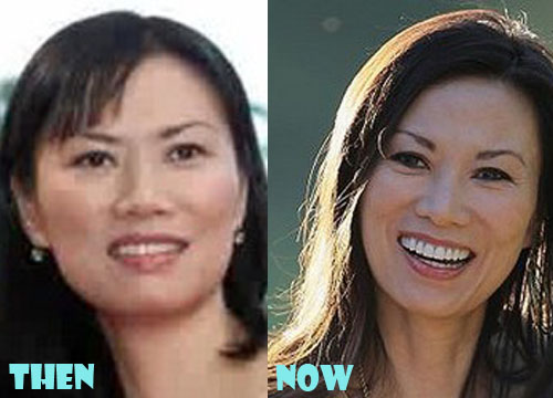 Wendi Deng Plastic Surgery Nose Job