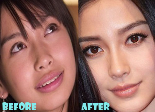 Angelababy Plastic Surgery Nose Job