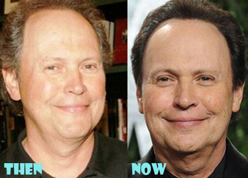 Billy Crystal Plastic Surgery Botox, Facelift