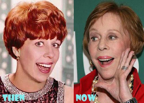 Carol Burnett Plastic Surgery Botox, Facelift
