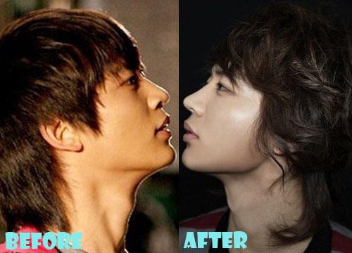 Choi Minho Plastic Surgery Nose Job