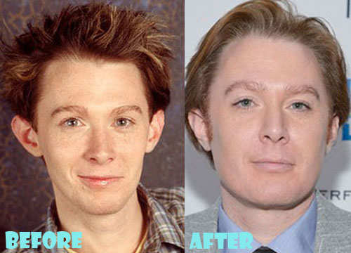 Clay Aiken Plastic Surgery Nose Job