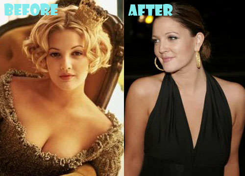 Drew Barrymore Plastic Surgery Boob Job (Breast Reduction)