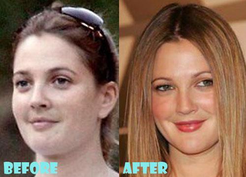 Drew Barrymore Plastic Surgery Nose Job