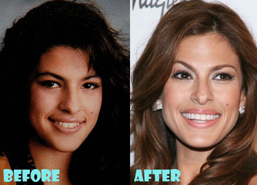 Eva Mendes Plastic Surgery