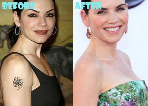 Julianna Margulies Plastic Surgery Boob Job
