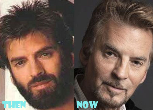 Kenny Loggins Bad Plastic Surgery