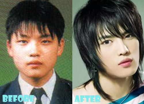 Kim Jaejoong Plastic Surgery Eyelid Surgery