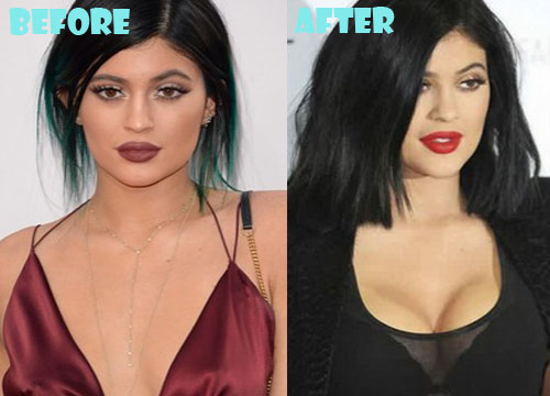 Kylie Jenner Plastic Surgery Breast Implant
