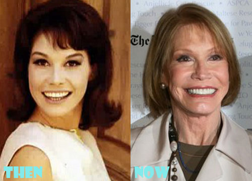 Mary Tyler Moore Bad Plastic Surgery
