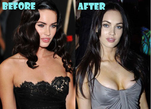 Megan Fox Plastic Surgery Boob Job