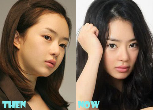 Seo Woo Plastic Surgery Eyelid Surgery