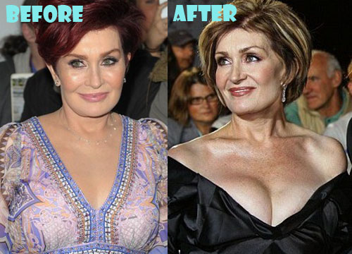 Sharon Osbourne Plastic Surgery Boob Job