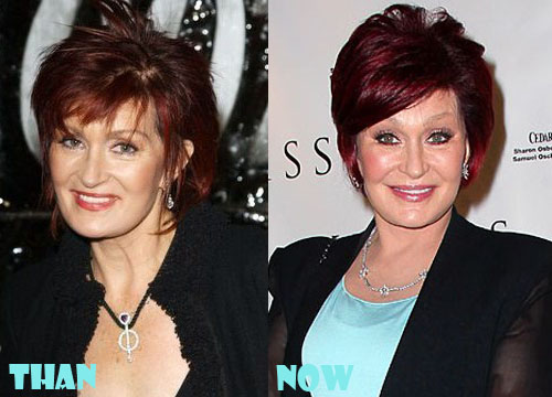 Sharon Osbourne Plastic Surgery Botox, Facelift