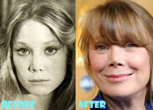 Sissy Spacek Plastic Surgery Nose Job