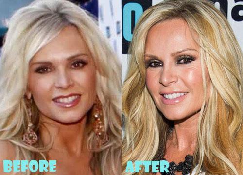 Tamra Barney Plastic Surgery Botox