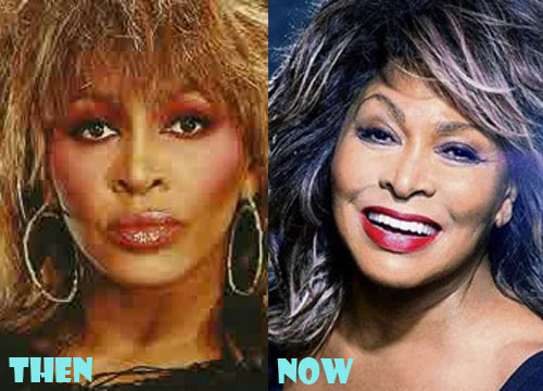 Tina Turner Plastic Surgery Botox, Facelift