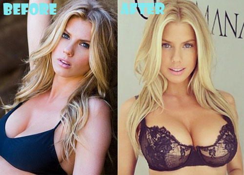 Charlotte McKinney Plastic Surgery Breast Implant