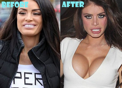 Chloe Sims Plastic Surgery Breast Implant
