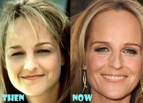 Helen Hunt Plastic Surgery Botox, Facelift
