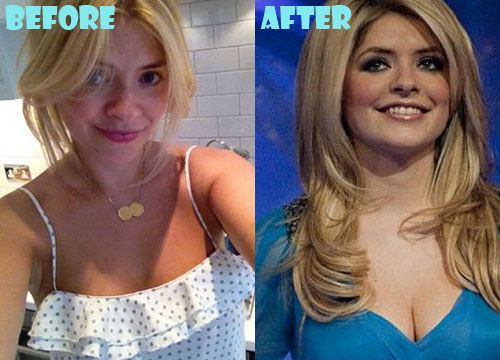 Holly Willoughby Plastic Surgery Breast Implant